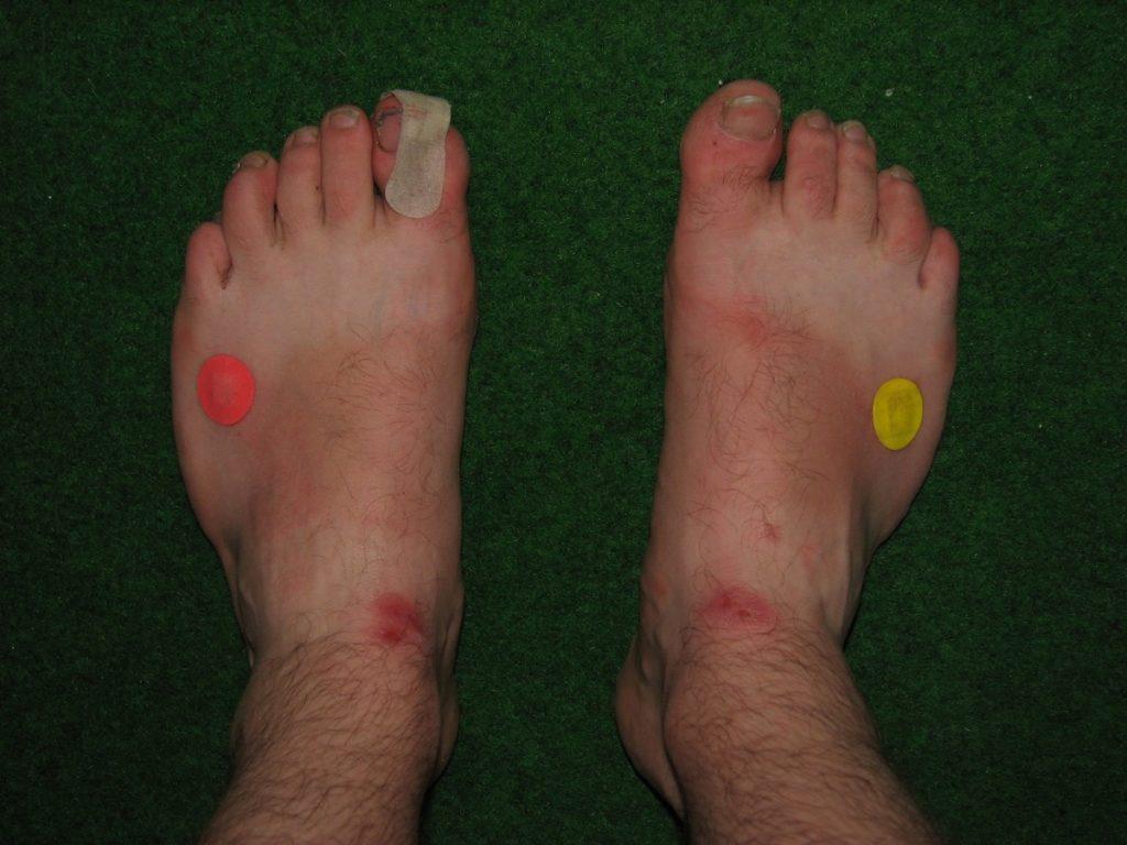 pieds de Martouf blessure sparadrap
