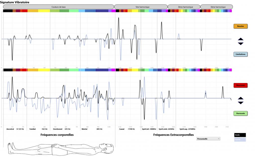 LVA-Life-Vibration-Analyser-signature-vibratoire-martouf