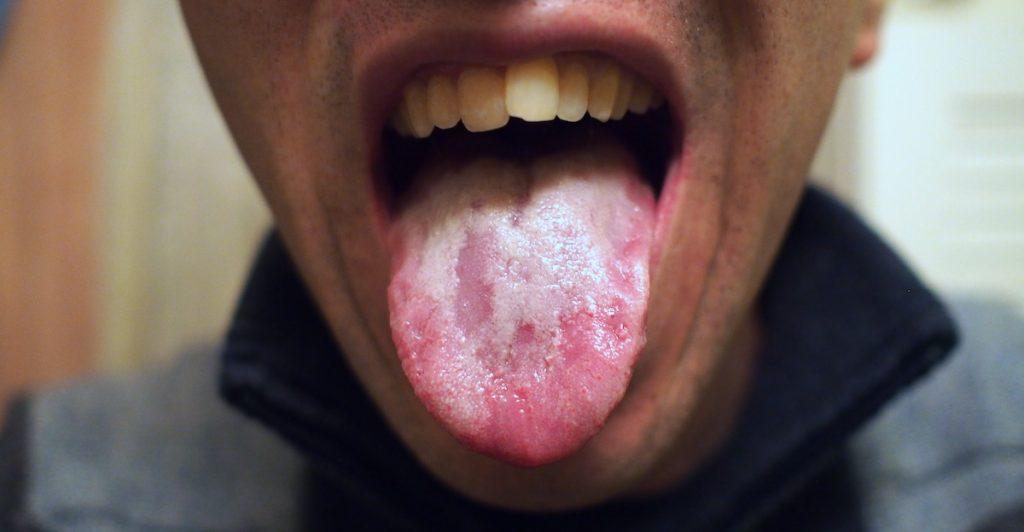 langue blanche qui montre une digestion déséquilibrée